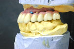 Dental implant systems
