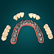 Zirconia Crowns | Dental Veneers | Dental Lab | Katara Dental